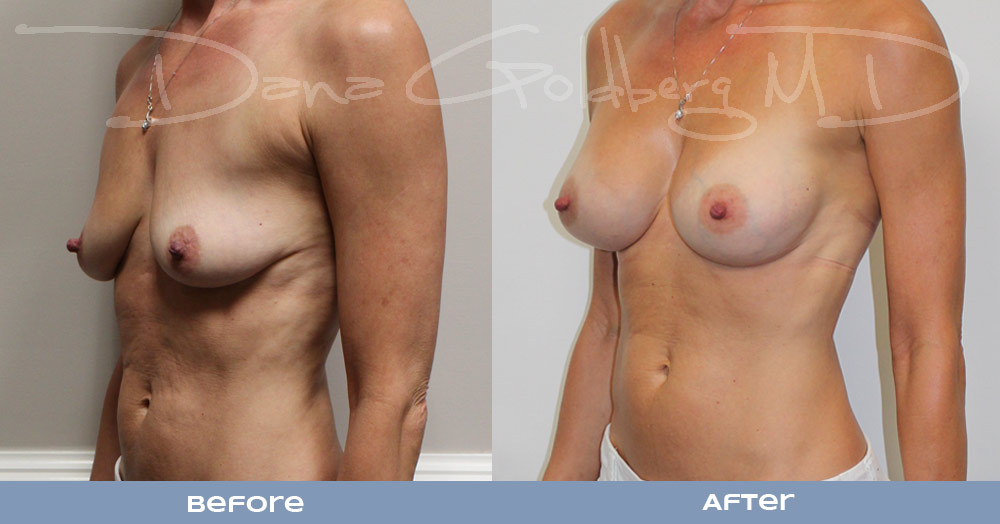 Form Stable Breast Augmentation 410