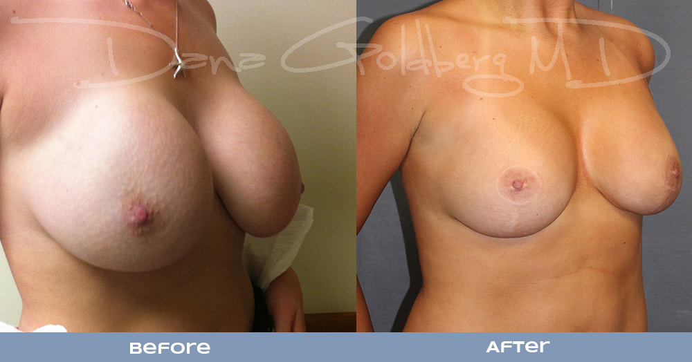 Side Breast Augmentation Revision