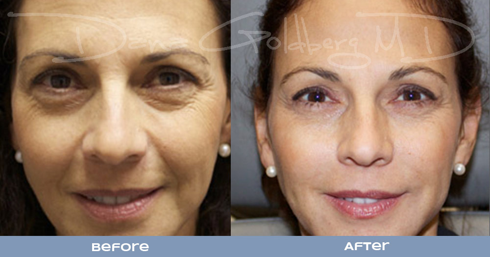 Facial fillers for wrinkles