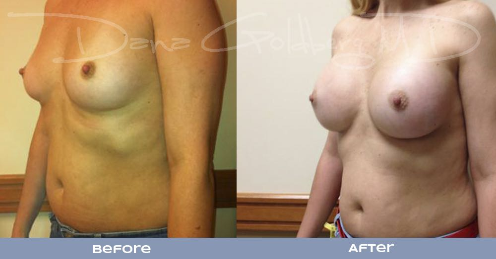 Breast Augmentation Before And After Front Side View
