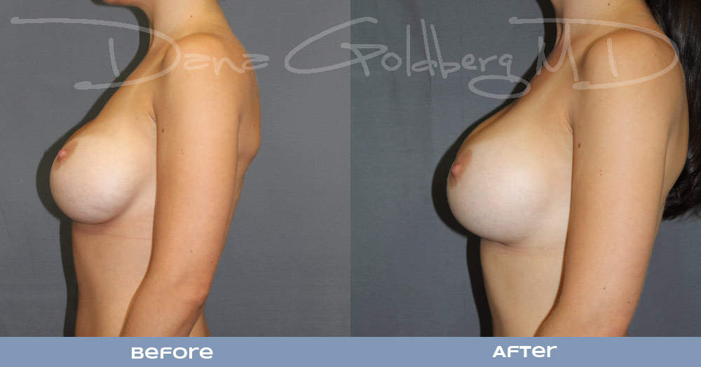 Breast Augmentation Revision and Implant exchange
