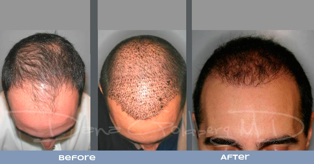 Patient 9: men's Neograft hair transplant before and after