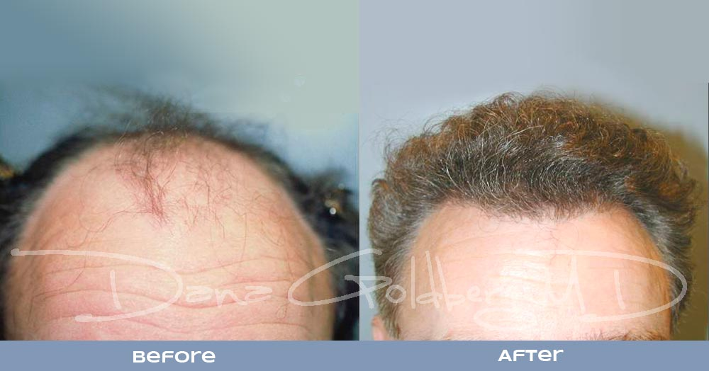 Patient 10: men's Neograft hair transplant before and after