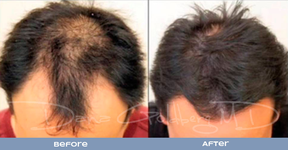 Patient 2: men's Neograft hair transplant before and after