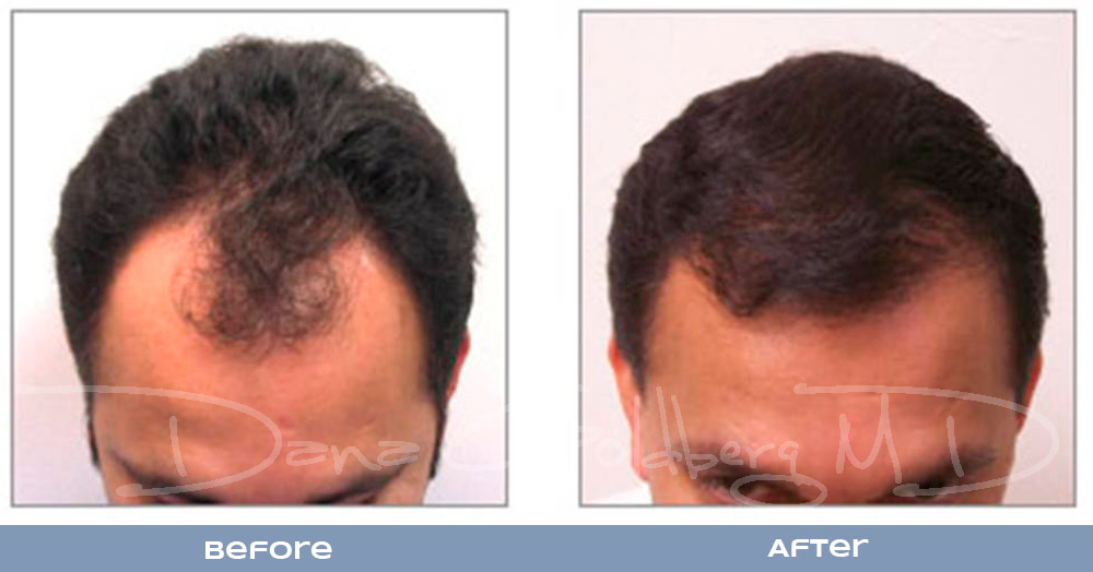 Patient 3: men's Neograft hair transplant before and after