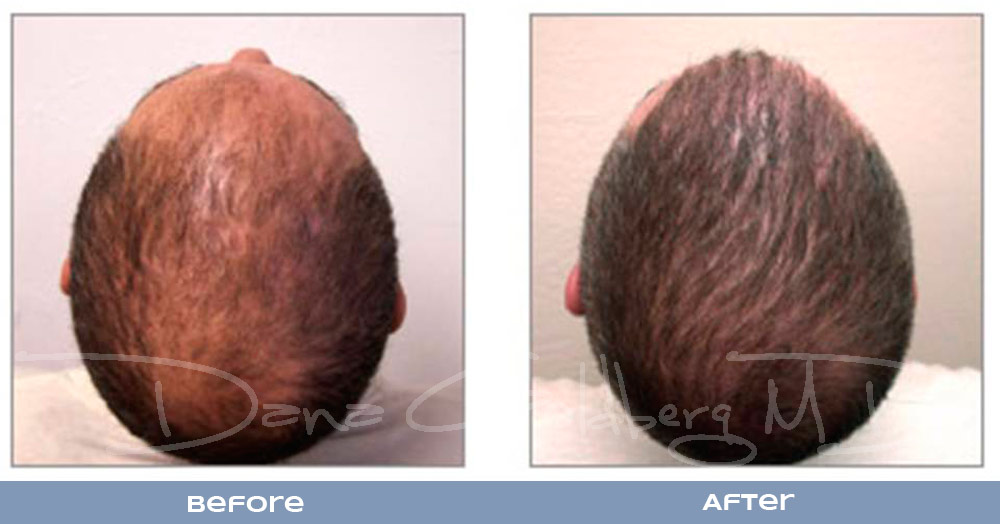 Patient 4: men's Neograft hair transplant before and after