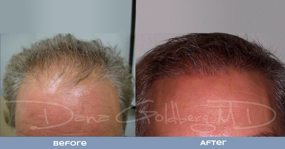 Patient 5: men's Neograft hair transplant before and after