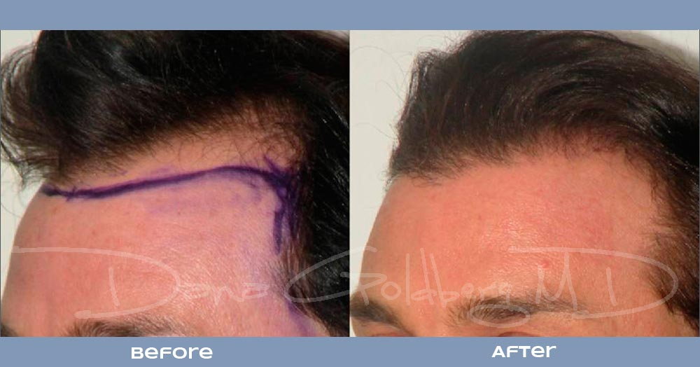 Patient 6: men's Neograft hair transplant before and after