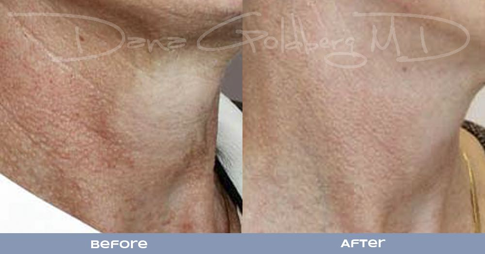 Laser skin Resurfacing on the neck