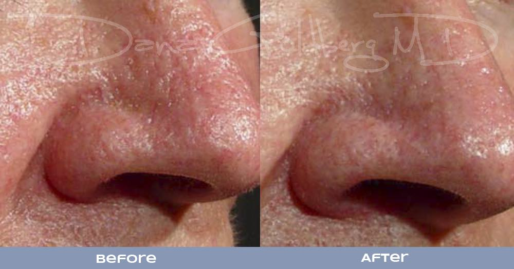 Laser Genesis resurfacing nose