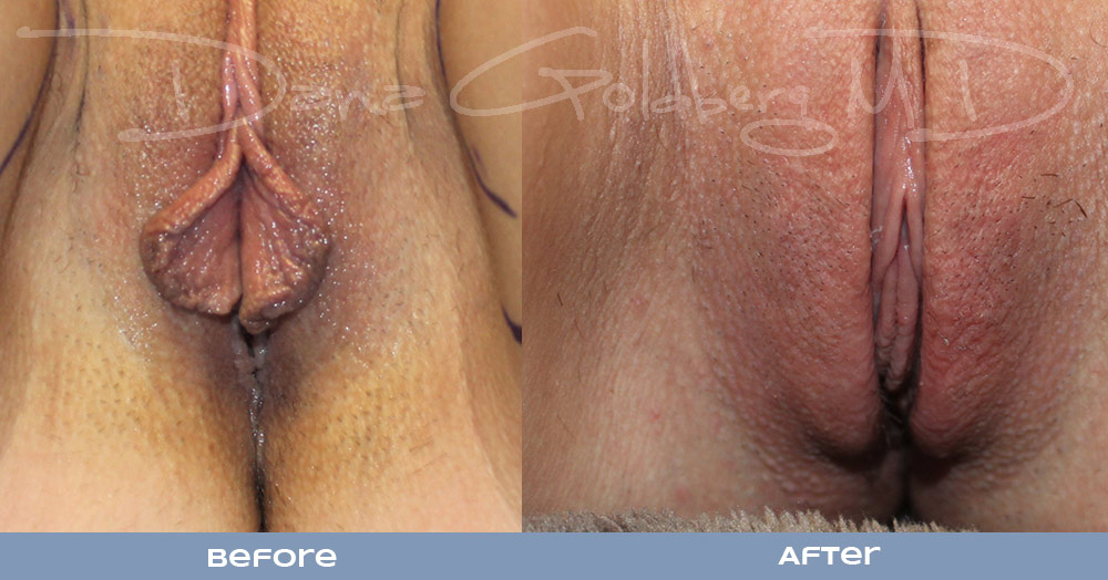 Labiaplasty before and after photo pre-surgery and post-surgery