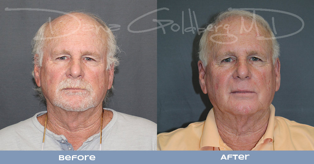 NeoGraft Before and After Image