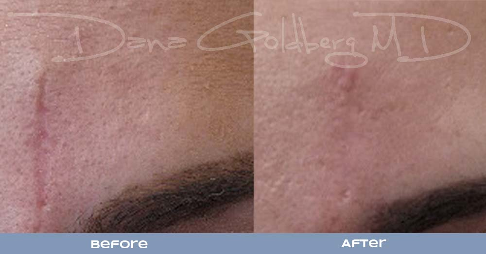 RF Micro needling Scar revision