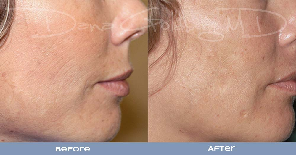 RF Micro Needling for fine lines and wrinkles