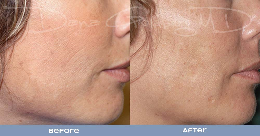 RF Micro Needling for skin resurfacing