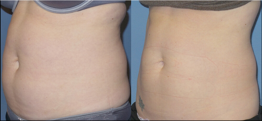 Non surgical fat reduction