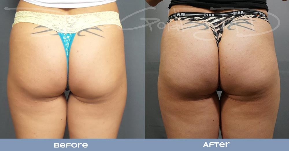 Injectable Butt Lift
