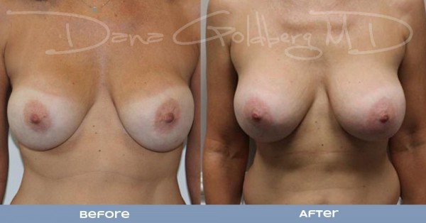 Breast implant Exchange Before And After Front View