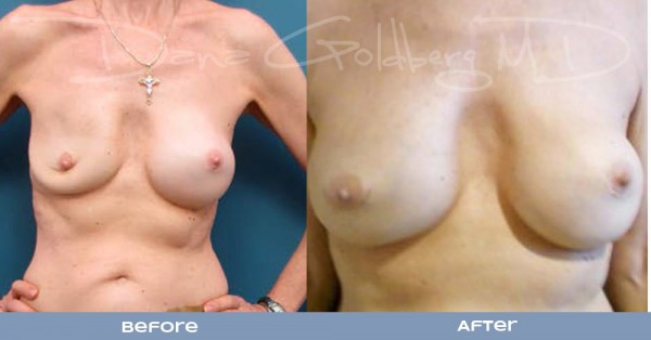 Breast Implant Repair Front View