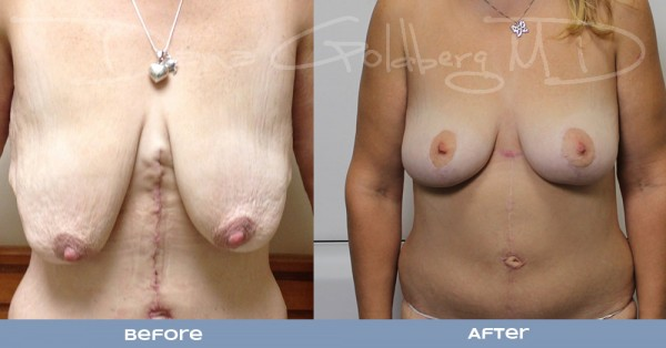 Breast lift Before And After Front View