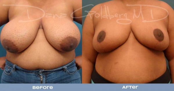 Breast reduction before and after front