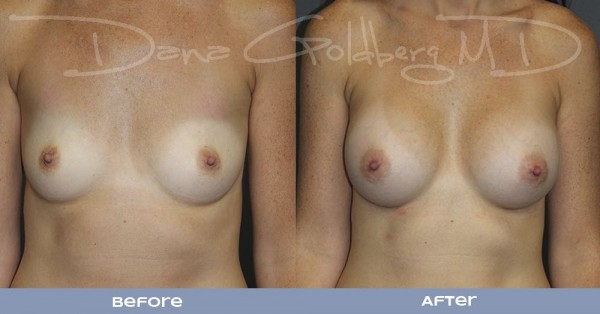 West Plam Beach Breast Augmentation