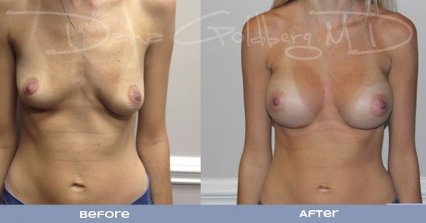Breast Augmentation Before And After Fron View