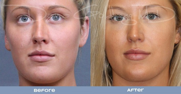 Front: Plastic surgery before and after