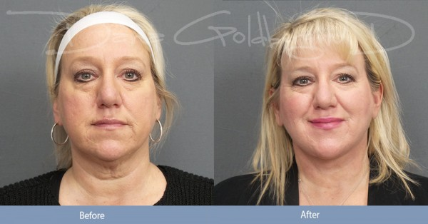 Neck Lift and CO2 Front
