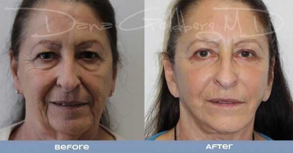 Face Lift Front