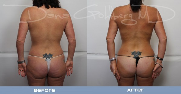 Back: Plastic surgery before and after