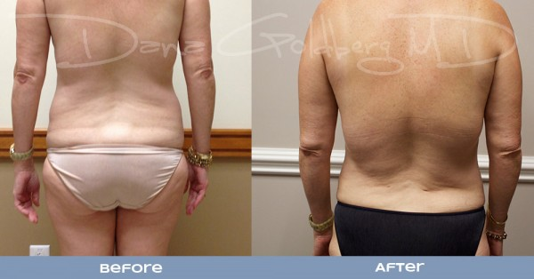 Liposuction to lower back