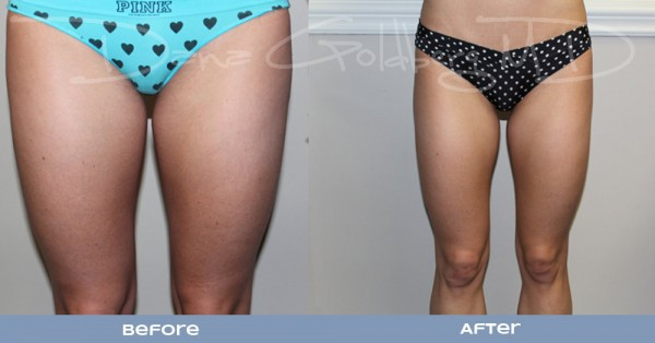 Liposuction front view