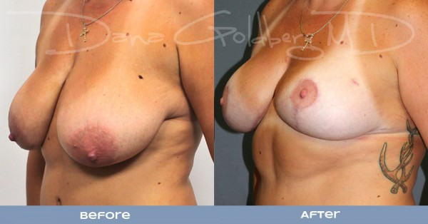 3/4 View: Plastic surgery before and after