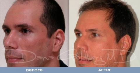 Patient 1: men's Neograft hair transplant before and after