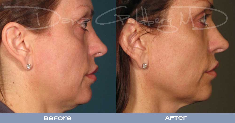 Ultherapy lOWER face